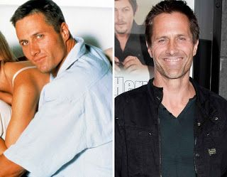 Rob Estes Plastic Surgery looked better before