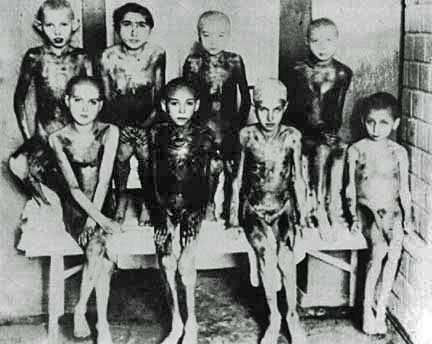Gypsy children, at Auschwitz, who had a disease called Noma