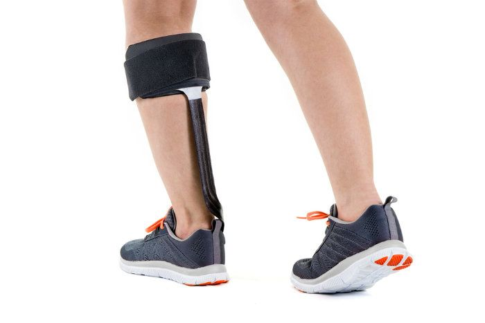 Bracing yourself to deal with MS foot drop can be tough, so columnist Ed Tobias tiptoes through the options of physical support and electrical stimulation.