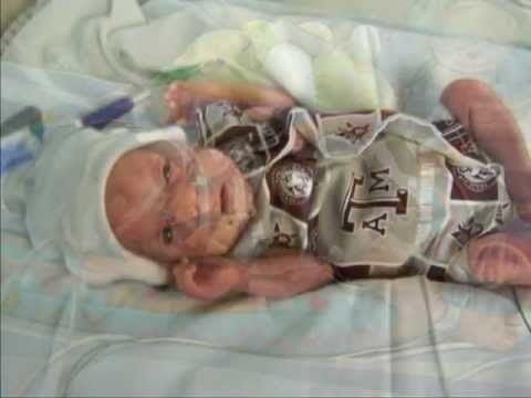 30 best images about premature babies 22 - 24 weeks on ...
