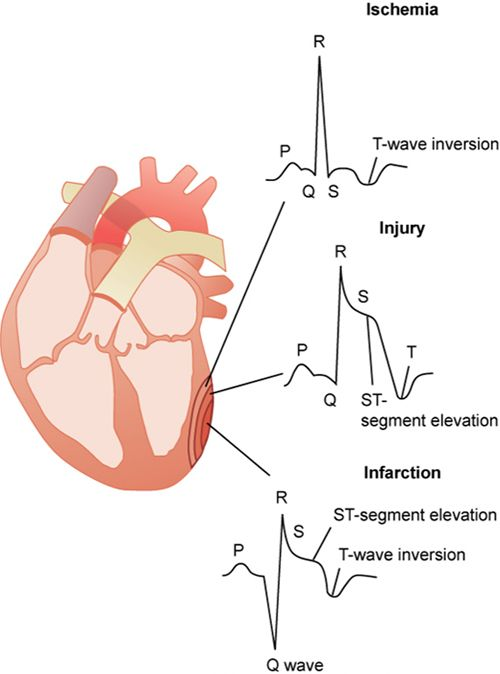 Myocardial infarction: diagnostic studies