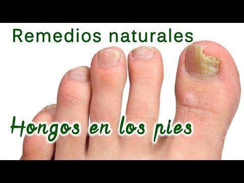 Tratamientos para los hongos en las uñas sin medicinas | Salud