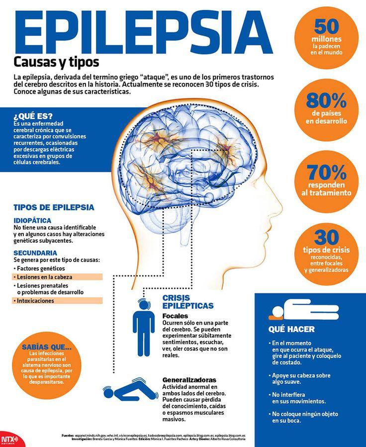 """La epilepsia, derivada del termino griego """"ataque"""", es uno de los primeros trastornos del cerebro descritos en la historia.  #Infographic"""