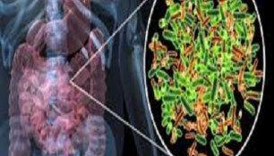 Bacterie overgroei in dunne darm (SIBO): dieet alleen is niet genoeg