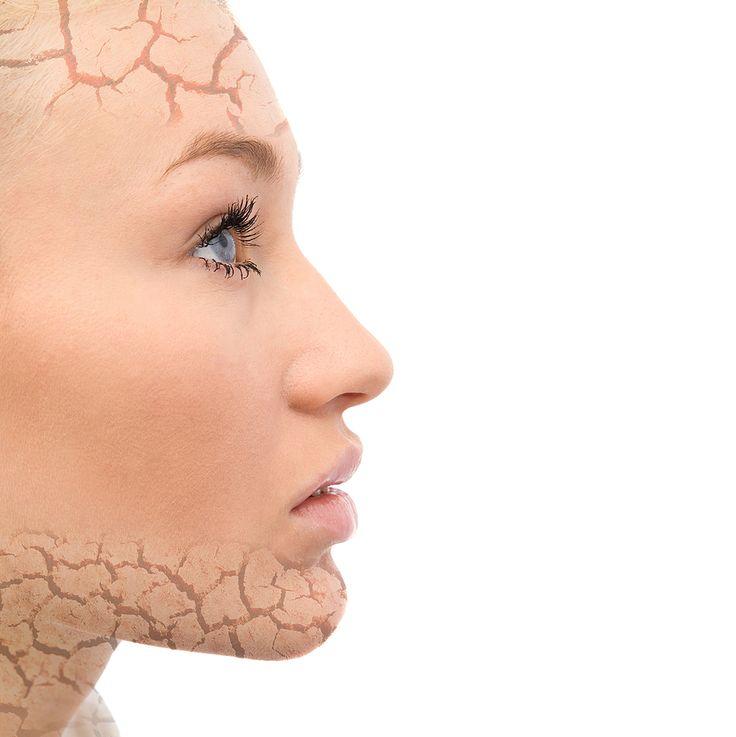 Sun Damaged Skin On Face Treatment