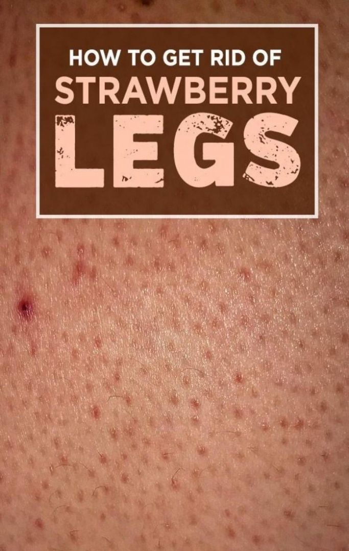 d7cbf6de2abb10b459b41487a2c1a125 - How To Get Rid Of Strawberry Spots On Legs