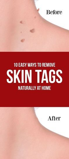 10 Easy Ways to Remove Skin Tags Naturally at Home
