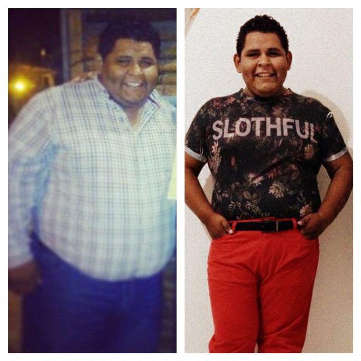 50 kgs menos en 4 meses con manga Gastrica!!