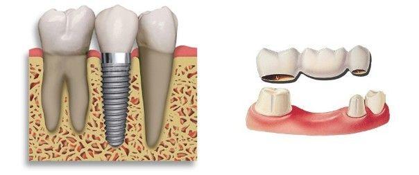 Dental-Implant vs Bridge