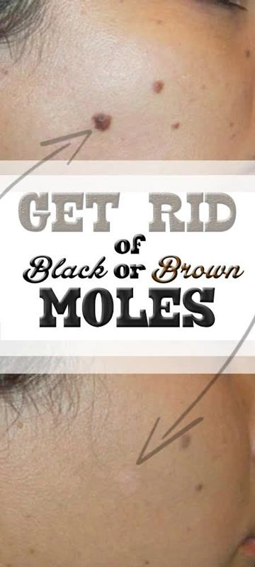 Skin moles appear with us as we grow older and older we get their number usually increases. Of course the main factor is the gene and the quality of your skin, because what make them appear are certain defects in the skin epithelia. ==