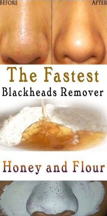 #blackheads #blackheads #naturally #how #get #rid