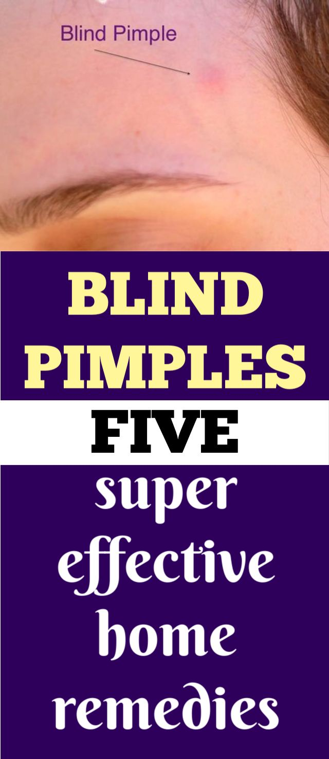 Use this face pack and not a single pimple will come on your face