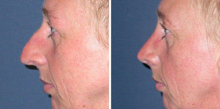 Foto's voor en na van neuscorrecties door Dr Leo Peter van der Weij, plastisch chirurg in het Boerhaave Medisch Centrum. Telefoonnummer: 020-3050030