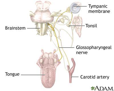 Glossopharyngeal neuralgia