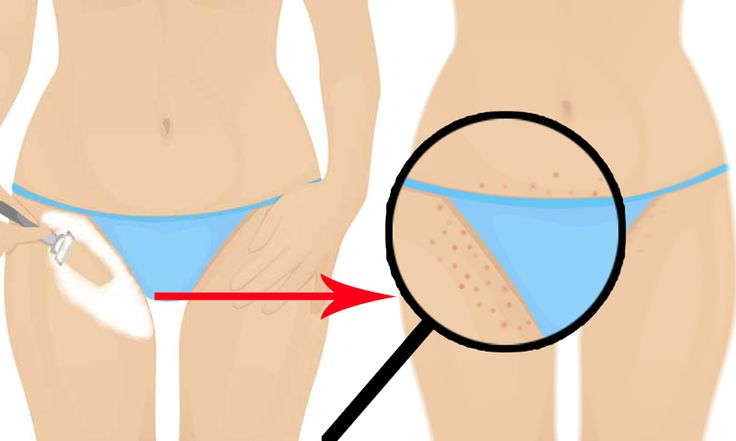 Beeindruckend! So bekommen Sie nie wieder Rasierbrand im Genitalbereich! – Seite 3 von 3 – haare
