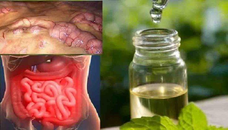 Oczyść swoją okrężnicę! Eksperci na całym świecie potwierdzają, że większość chorób przewlekłych, w tym nowotwory zaczynają się ...