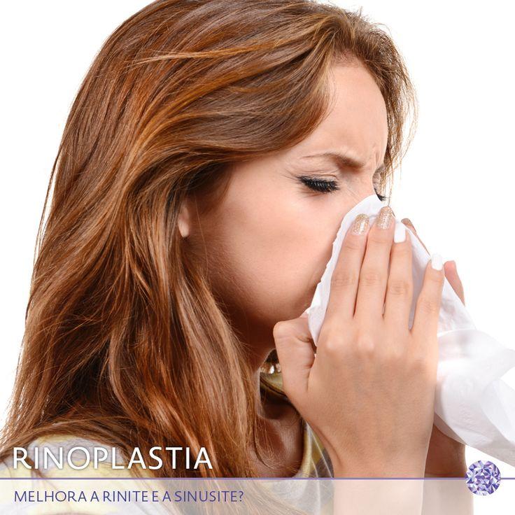 Isso é um mito! Rinite e sinusite são processos alérgicos que a rinoplastia não vai alterar em nada. Em alguns casos, pode haver melhoras da obstrução nasal, mas o paciente não deixa de ser uma pessoa alérgica.