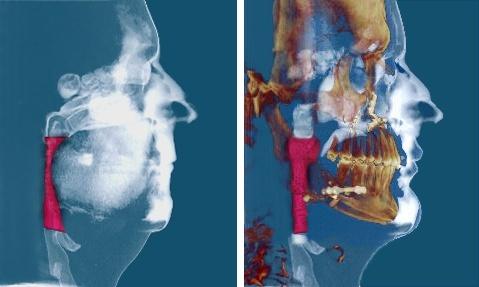 Maxilolarioja Blog: En más del 90% de los casos la Cirugía Maxilofacial cura el Síndrome de apneas-hipopneas durante el sueño (SAHS)