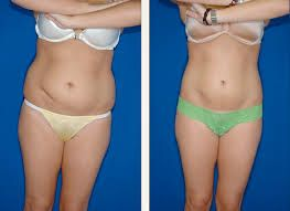 The Dermatology & Liposculpture Center offers tumescent liposuction Wellington services so if you need to take off some unwanted fat, call us today and we can help!