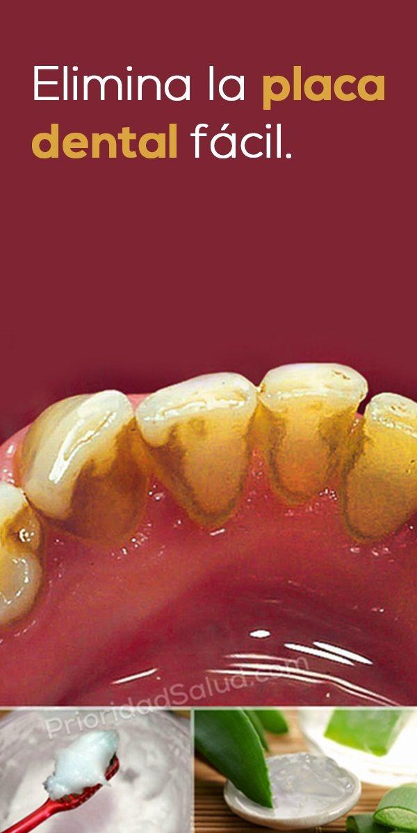 Remedio Natural Para Eliminar La Placa Dental Y El Sarro En Los Dientes Solucion Super Sencilla Que Promu Health Remedies Natural Remedies Health And Wellness