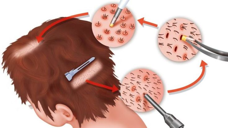 FUE #Hair #Transplant in #Pakistan http://hairtransplantdubai.kinja.com/fue-hair-transplant-in-pakistan-1821688039