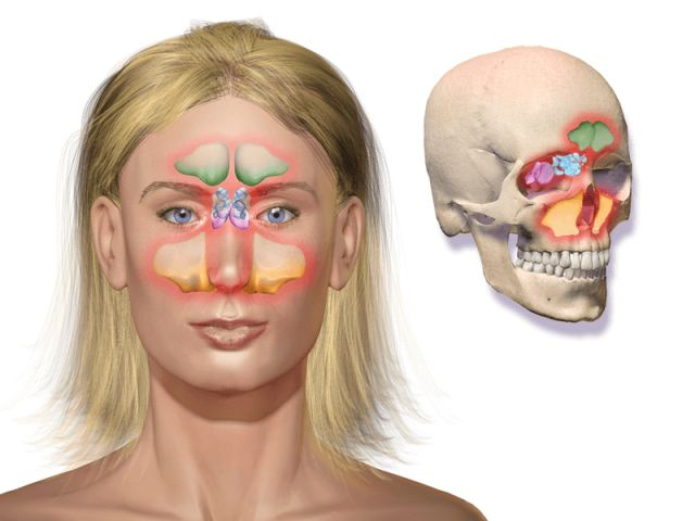 Co na ucpaný nos a zánět dutin