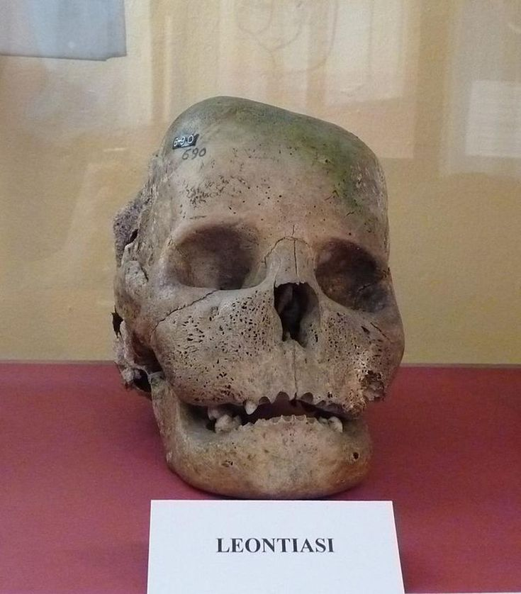 What Causes 'Lion Face' Syndrome Of The Skull?