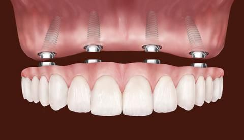 All on four dental implants. Ask for a complimentary consultation at Dr. Burch's office in Mountain View, CA.