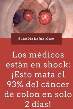 Los médicos están en shock: ¡Esto mata el 93% del cáncer de colon en solo 2 días! #cancerdecolon #curarcancer #matarcancer