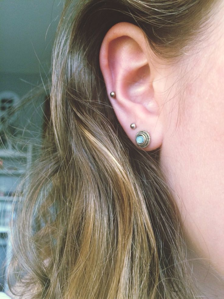 auricle and double lobe More