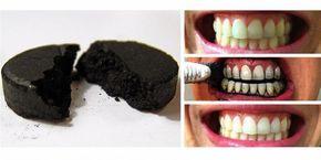 Hoy les traemos un trucobuenísimo parablanquear los dientes sin necesidad de costosos tratamientos y uso de químicos. Es realmente económico y muy fácil de usar. No es otra cosa más que Carbón activado. Así es, y éste lo pueden conseguir en cápsulas o tabletas sueltas en tiendas naturistas. Lo que tienes que hacer es humedecer …