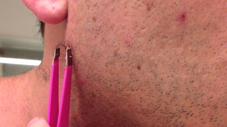 Watch As This Guy Pulls Out The World's Longest Ingrown Hair!