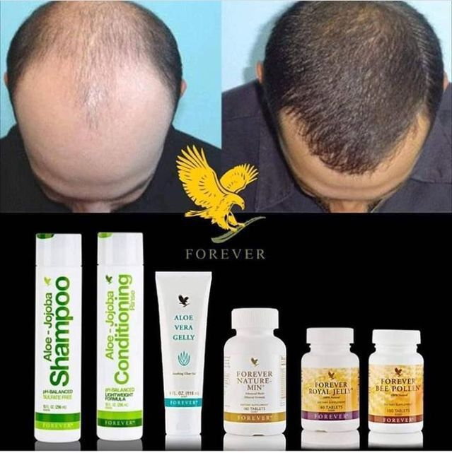 Hair Loss Balding Solution Shop Products By Following The