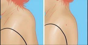 Trápi vás vyčnievajúci hrb na chrbte? Vďaka tomuto triku sa ho zbavíte | Báječné Ženy