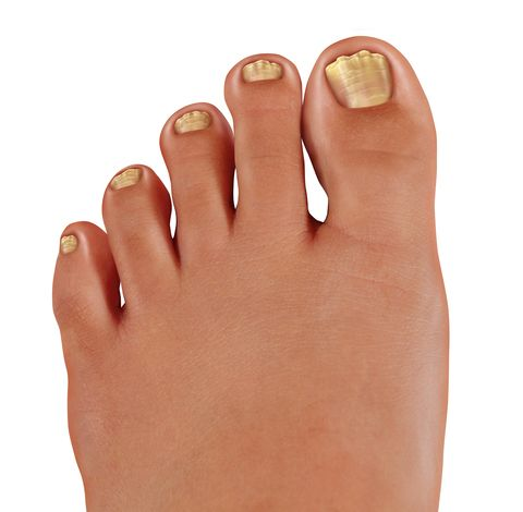 Fungal nail infection? Chief Podiatrist Michelle Champlin discusses treatment options. www.dubaipodiatry.com