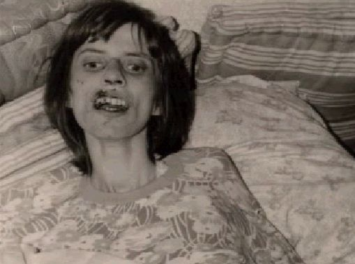 "Anneliese Michel was a German Catholic woman who was said to be possessed by demons. Her family and priest tried to get her to undergo an exorcism but it didn't appear to work. She died. An autopsy revealed that she died from starvation and dehydration. Her death ended up going to court. Anneliese Michel is the story behind ""The Exorcism of Emily Rose""."