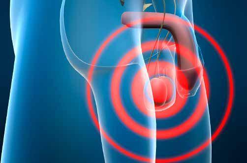 Sntomas y tipos de balanitis - Salud al da