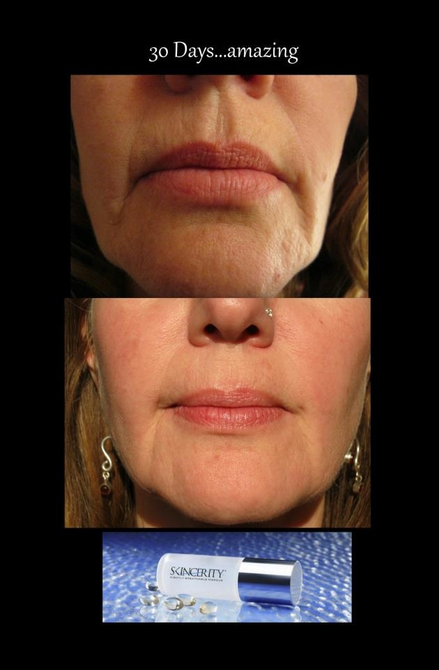 After using SkinCerity for 30 days! WOW! visit  http:www.mynucerity.biz/sandradekoning
