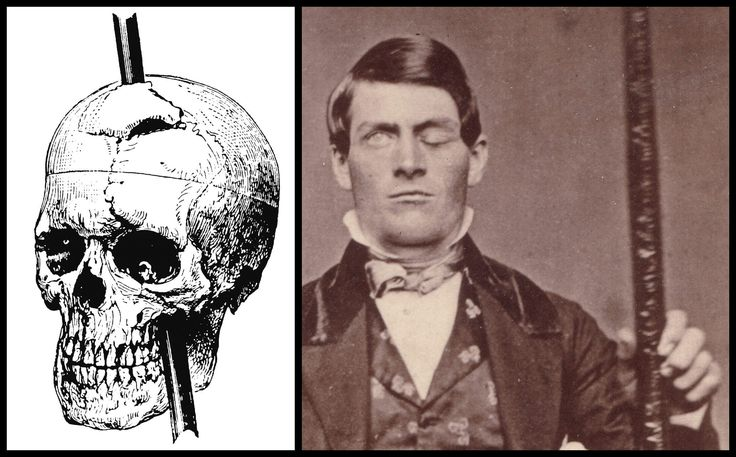 An accident on railroad with a tamping iron made Phineas Gage history's most famous brain injury survivor