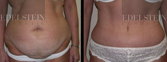 Female patient. Front view. Photo taken at 3 months after full abdominoplasty with supplementary liposuction. More pics at http://www.edelsteincosmetic.com/gallery.php