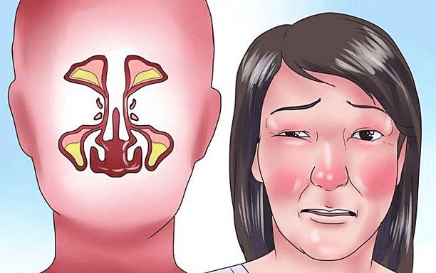 Als je een verstopte neus hebt en geen enkele mogelijkheid om te ademen is er eindelijk een oplossing waarbij je alleen je eigen handen nodig hebt. De eerste is erg makkelijk: Druk met het puntje van je tong tegen je gehemelte laat je tong vervolgens gaan en druk met twee vingers op het stukje tegen …