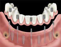 #Schmal #Implantat bei reduziertem #Knochenangebot ?  http://www.zahn-zahnarzt-berlin.de/deutsch/news/schmal-implantat.html