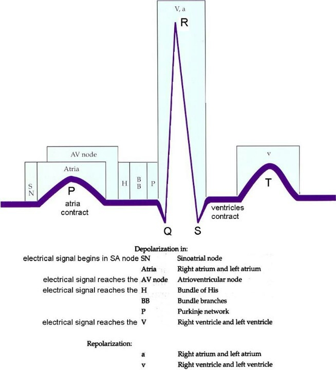 EKG: I always seem to have an issue with remembering this.
