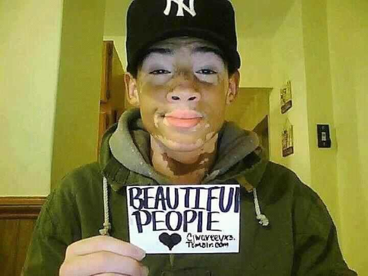 This is included in my Michael Jackson category because this is what Vitiligo looks like.  Michael did NOT bleach his skin.  Without the use of make-up to even-out his skin color, THIS is what he would have looked like.  Only worse.  Michael's Vitiligo was much more advanced than this.  Please share this so everyone can be on the same page about this.....