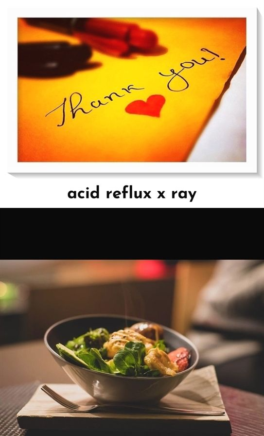 Acid Reflux X Ray_734_20180718082406_18 Best Foods To Eat While Having Acid Reflux Acid Reflux Ibs Nausea Pregnancy Third Acid Reflux 2 Dpo