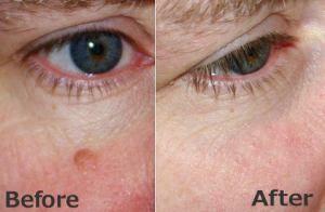 Remove moles naturally with DoTERRA Oregano essential oil