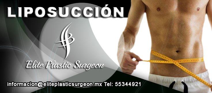 Liposuccion segura /cirujano plástico certificado 1770 Mexico 🇲🇽 Dra Stephania Torres Pastrana y Rivera