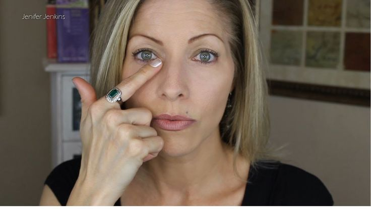 Part 2 - Restylane Under Eye Filler Injections for Under Eye Bags and Pu...