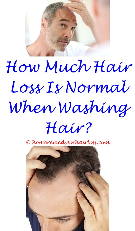 wen hair care reviews hair loss - levora side effects hair loss.betamethasone lotion for hair loss and vertigo olive oil for hair loss forum rhodiola ashwagandha hair loss 6785221835
