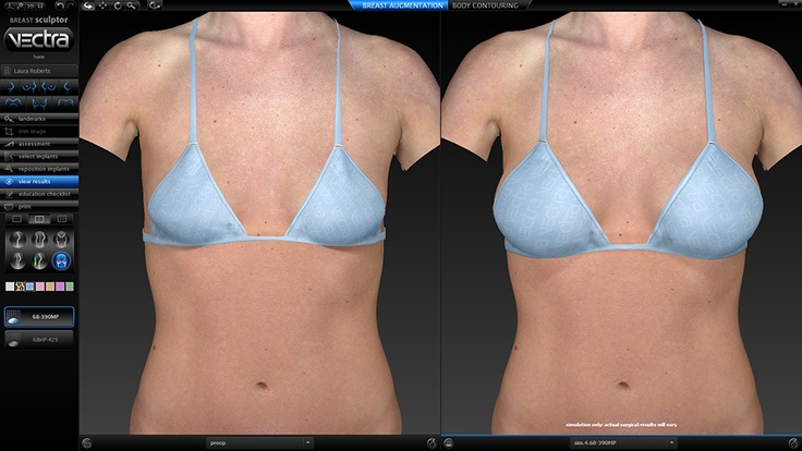VECTRA 3D patient image before and virtual after.